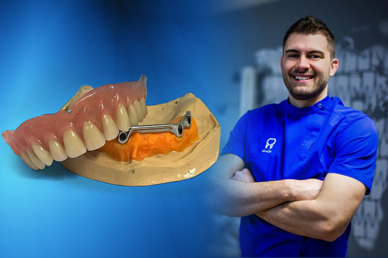 Polufiksni rad na 4 implantata - 4Smile