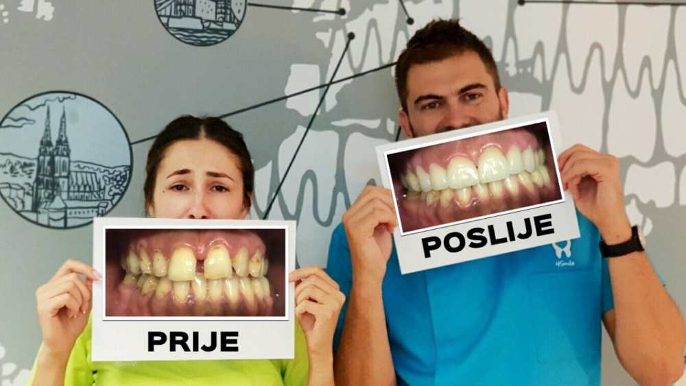 "Što je ""Smile Makeover""?"